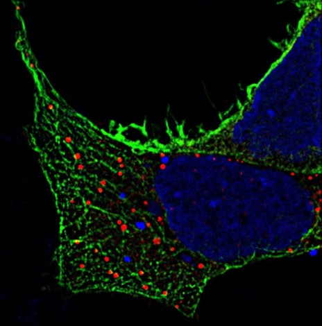 Invitation: How Do We See Our Sample? – Considerations for High Resolution and Super Resolution Microscopy