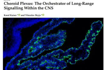 Choroid Plexus: The Orchestrator of Long-Range Signalling Within the CNS