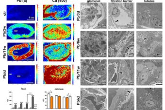 A Clearance Period after Soluble Lead Nanoparticle Inhalation Did Not Ameliorate the Negative Effects on Target Tissues Due to Decreased Immune Response