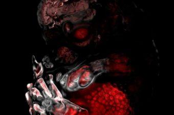 Imunofluorescenční snímek celého myšího embrya