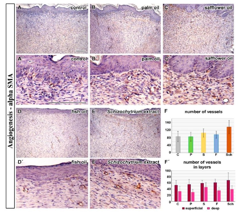 Comparison of Dietary Oils with Different Polyunsaturated Fatty Acid n-3 and n-6 Content in the Rat Model of Cutaneous Wound Healing