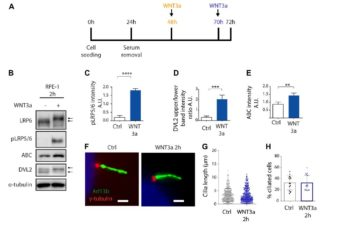 Primary Cilia Formation Does Not Rely on WNT/β-Catenin Signaling