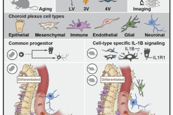 A cellular and spatial map of the choroid plexus across brain ventricles and ages