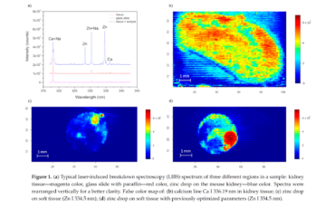 Methodology for the Implementation of Internal Standard to Laser-Induced Breakdown Spectroscopy Analysis of Soft Tissues